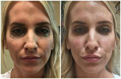 Filler for Under Eye Dark Circle Treatment