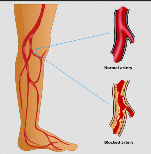 Peripheral Artery Disease Treatment Service in Ahmedabad, Ahmedabad ...