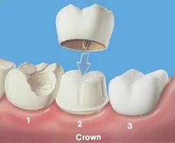 Crowns And Bridges Treatment Service