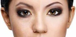 Skin Lightening Laser Treatment Service
