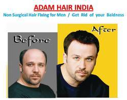 Non Surgical Hair Replacement Services