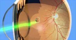 Retina Laser Treatment