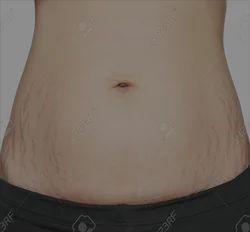 American Pain Weight Loss Clinic Delhi Service Provider Of Body
