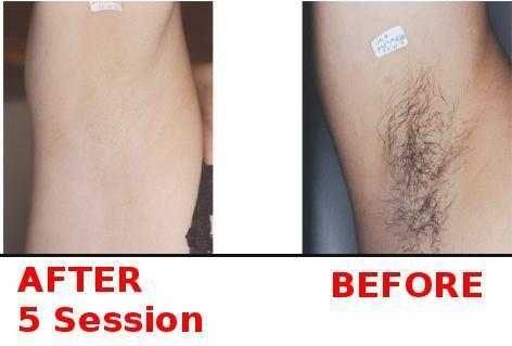 Permanent Laser Hair Removal In 51000 Rs Full Body At Rs 51000