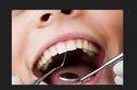 Regular Oral Checkups