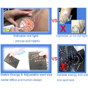 Q Switched ND Yag Laser Machine, Picosecond Tattoo Removal Machine,Tattoo Removal Pen
