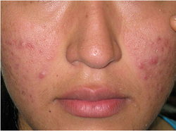 Pimple And Acne Scar Treatment Service