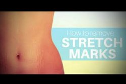 Strech Marks Laser Treatment