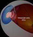 Intra Ocular Lenses