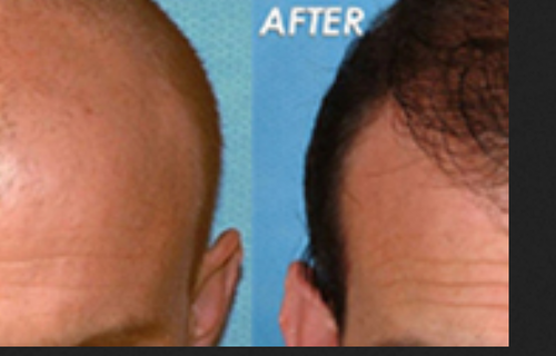 Hair Loss Treatment Vitiligo Surgery Service Provider From Surat
