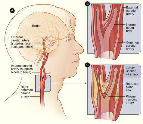 Carotid Artery Stenosis in Hyderabad, Banjara Hills by Star ...