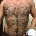Laser Body Hair Removal
