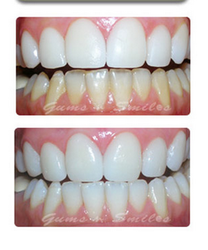 Teeth Whitening And Bleaching Treatment Service