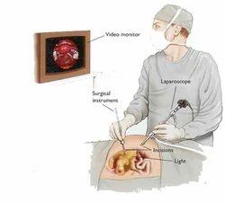 Laparoscopic Gallbladder Surgery