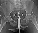 Hsg X-ray Service