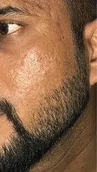 post acne scar treatments