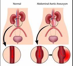 Abdominal Aortic Aneurysm Treatment Service