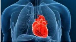 Cardiac Treatment Service