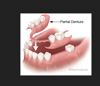 Partial Dentures Wisdom Teeth Removal From Pune