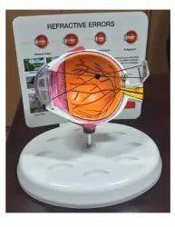 Model Eye For Refractive Errors