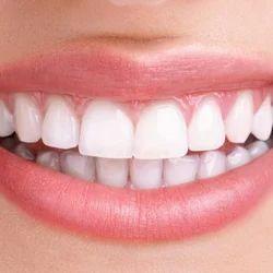 Full Mouth Rehabilation