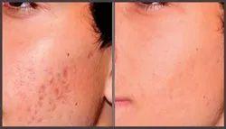 Acne Deep Scar Removal Treatment