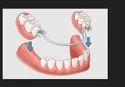 Removable Teeth