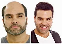 Unisex Non Surgical Hair Replacement