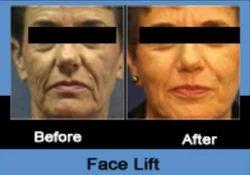 Face Lift Meloplasty
