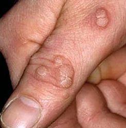 warts treatment ayurvedic)