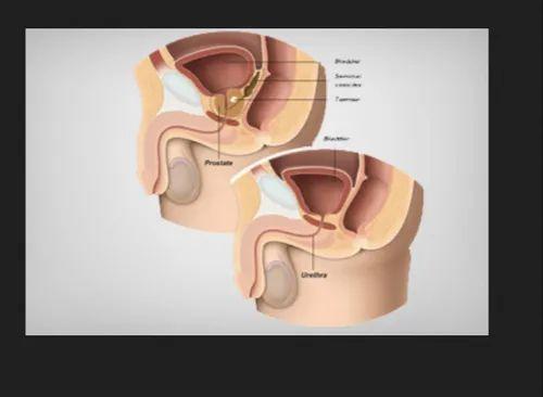 Unisex Robotic Prostatectomy Treatment Service Id 21362514555