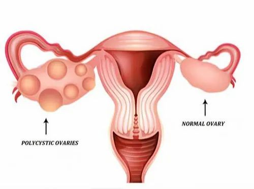 PCOS, PCOD Menstrual Disorder Treatment in Erode, Zero Size | ID:  21447537630