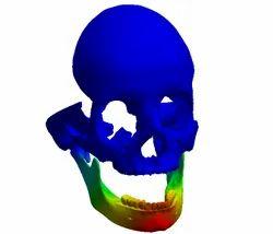 Medical Force Bio Mechanical FEA Analysis