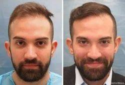 hair treatment & hair transplant