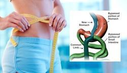 Endoscopic Weight Loss Treatments