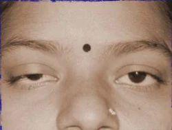 Drooping Eyelids