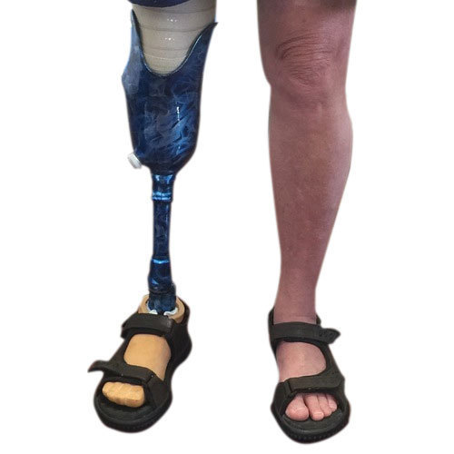Body Art Below The Knee: Below Knee Prosthetic Leg At Rs 23000 /piece