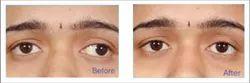Lazy Eye And Amblyopia Treatment Service