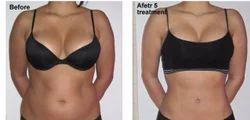 Ladies Fat Loss Program