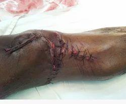 Complex Fracture Treatment