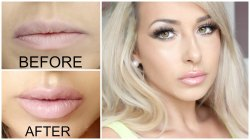Filler Treatment for Lip Corrections in Chennai
