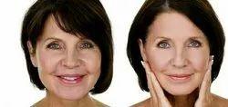 Face lift/ cosmatic surgery / rejuvination