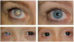 1261e6e8b6c Eyes Contact Lens Services