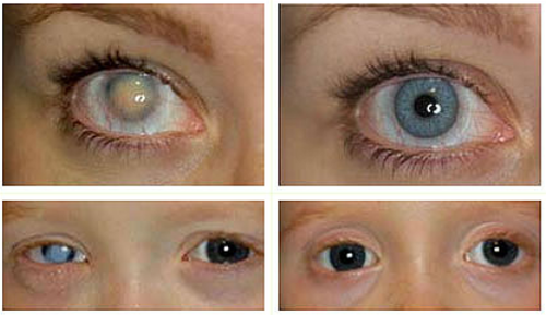 Eyes Contact Lens Services Optical Contact Lens Cosmetic Contact Lenses Eye Contact Lenses Eye Lens क न ट क ट ल नस स In College Gate No 3 Wadala Mumbai Aditya Jyot Eye Hospital Private Limited Id 17455223255