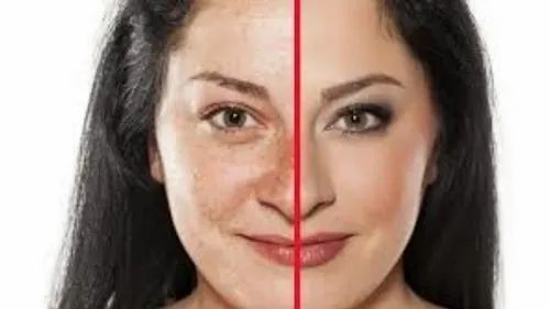 Pigmentation Treatment, For Laser & Peel