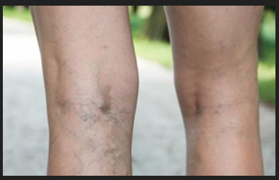 eb8ee3cb572 Latest Varicose Veins Laser Treatment Service in Dadar West