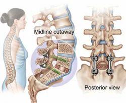 Spine Surgeries Treatment