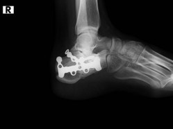 Digital X Ray Services