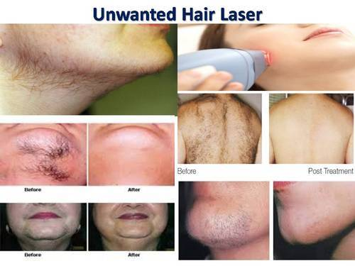 Laser Hair Removal Treatment At Rs 2500 Each Treatment ल जर