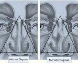 Septoplasty Surgeries